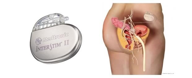 仙骨神経刺激療法 SNMのイメージ画像