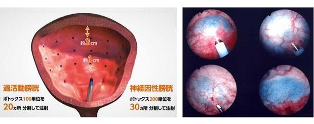 ボトックス膀胱壁内注入療法のイメージ画像