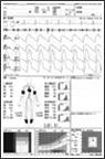 血圧脳波検査解析結果