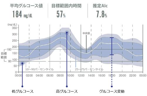 FreeStyleリブレProのデータ表示のイメージ。グラフでグルコース値の変動を確認できます。
