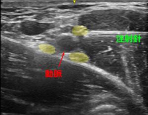 図5 エコーガイド下腕神経叢部神経ブロック麻酔イメージ図 黄色く色づけしているのが神経